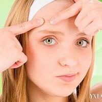 5招去除粉刺恢复光滑肌肤