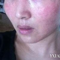 【图】皮肤过敏症状有那些皮肤过敏怎么治疗