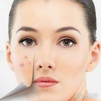 【图】脸上长粉刺怎么办4中治疗方法帮你解决问题