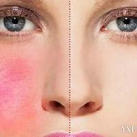 皮肤过敏瘙痒怎么解决?